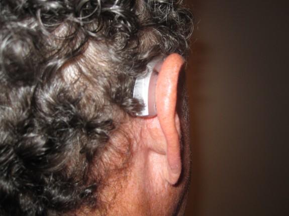 Karten hearing aid